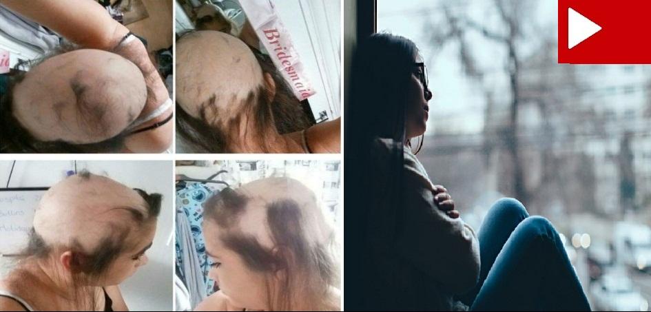 Jovem perde os cabelos após passar por relacionamento infeliz